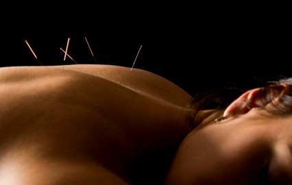 acupuncture-los-angeles-back-pain